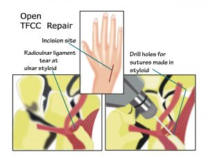 What Is The Tfcc How Do You Treat It Rehab U